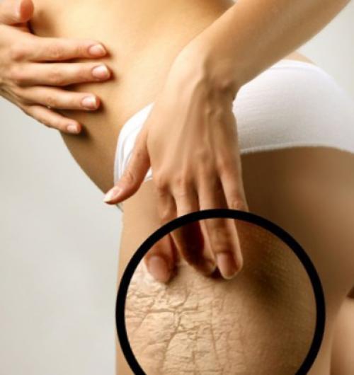 Làm thế nào để tránh khỏi các vết rạn da